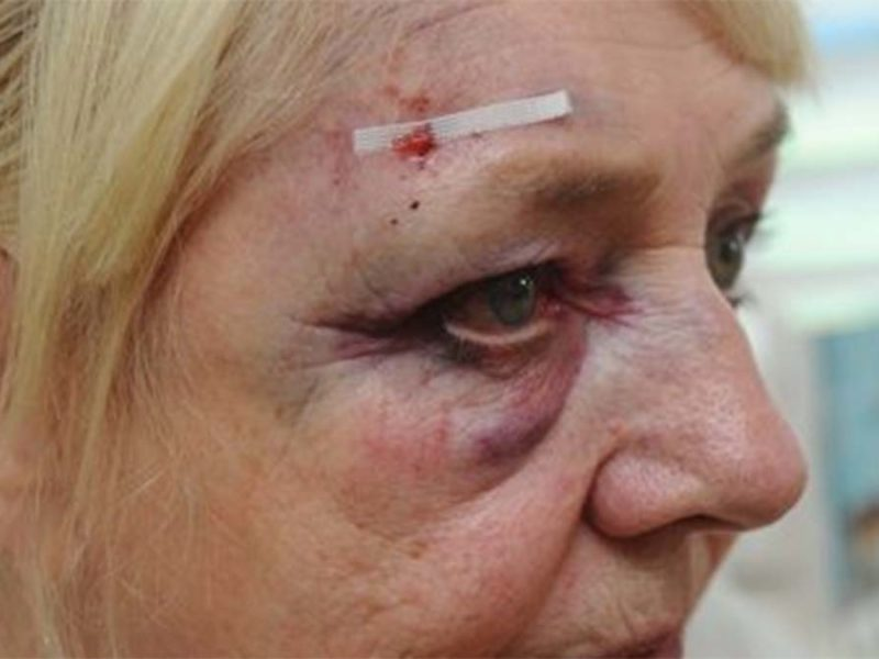 The woman's injuries after the attempted robbery in Lichfield